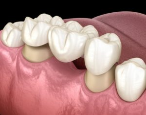 dental bridge in Falmouth replacing a missing tooth
